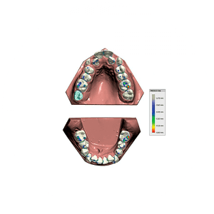 Exocad Software Modul - Icon Ortho Modul